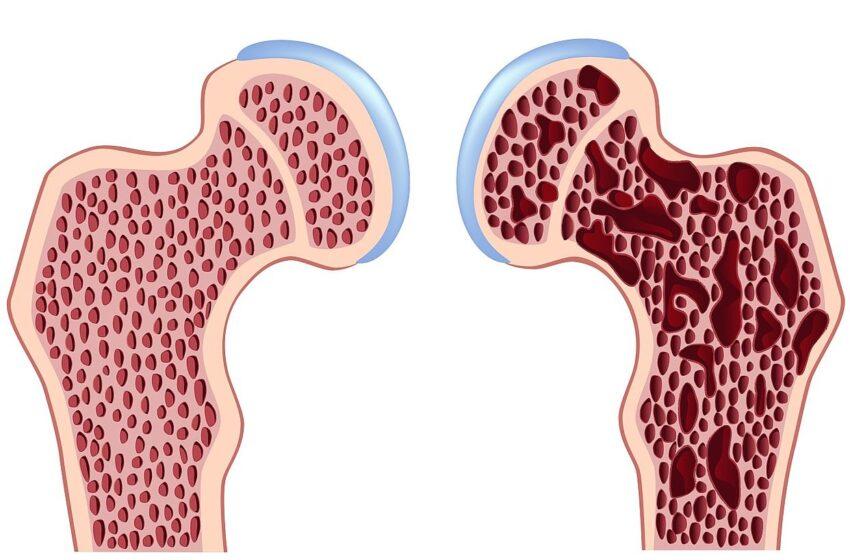 Prevenção da osteoporose precisa começar na infância, diz ortopedista