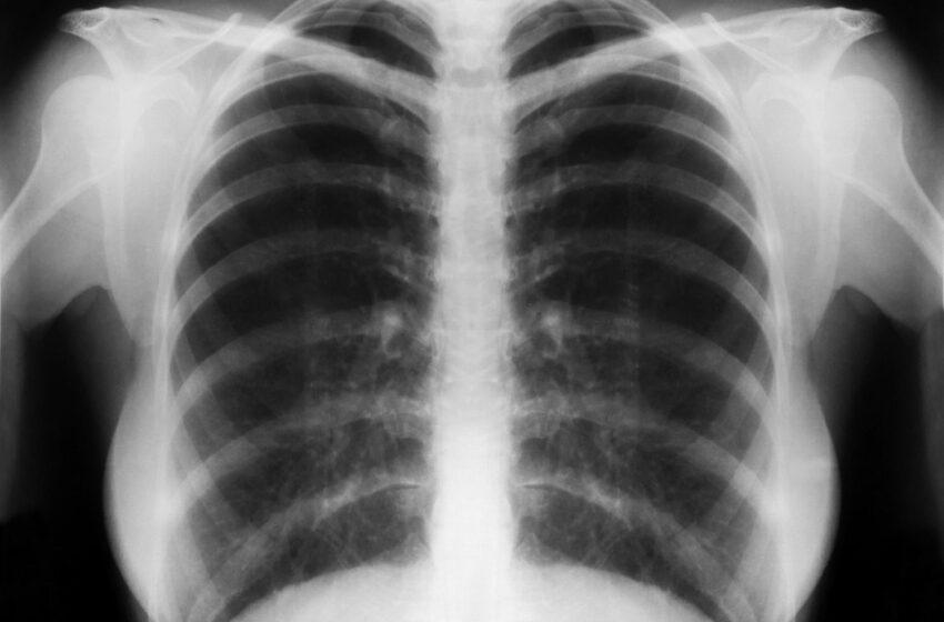 Pneumonia pode provocar tosse, febre e dificuldades para respirar e até levar à morte