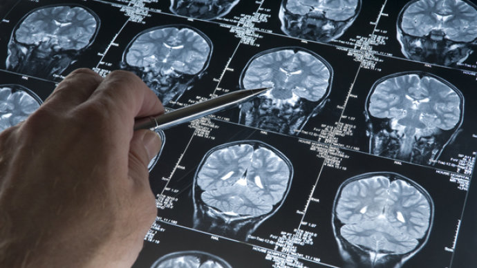 Pesquisadores veem sinais de progresso em tratamento para Alzheimer