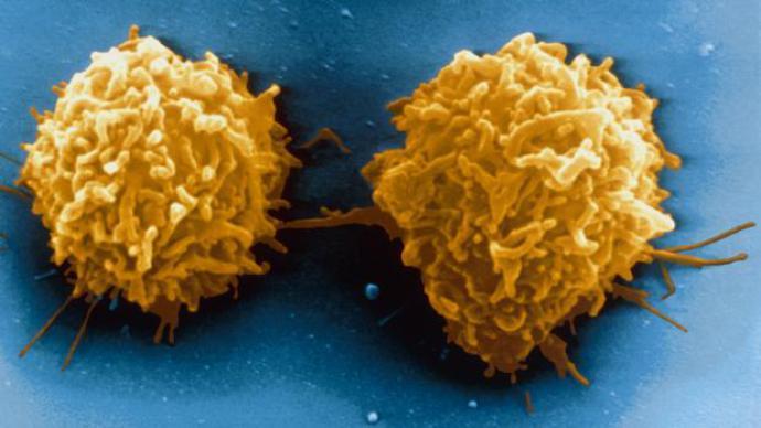 Novo tratamento para leucemia tem resultados surpreendentes
