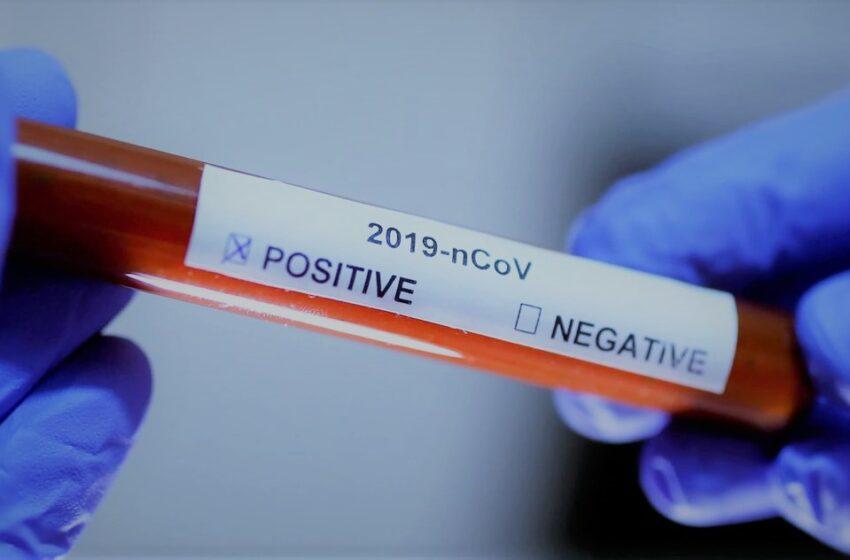 Especialistas alertam sobre sintomas menos comuns da covid-19